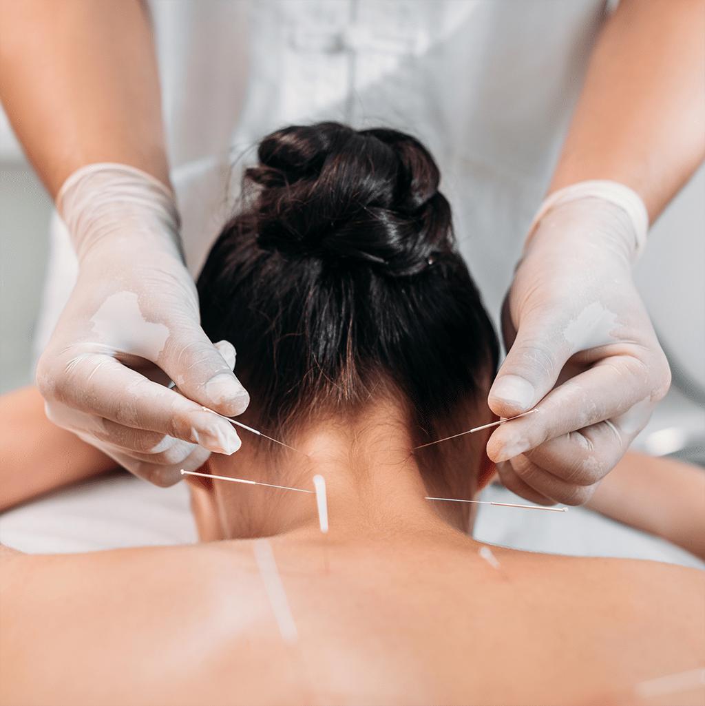 BMS Akupunktur